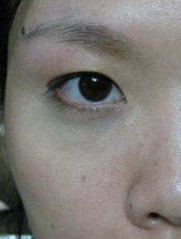 Dark Eye Circles After Bionic Eye Cream