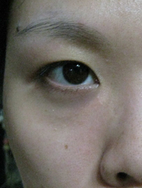 dark_eye_circles_before