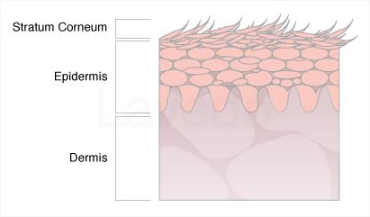Psoriatic Skin