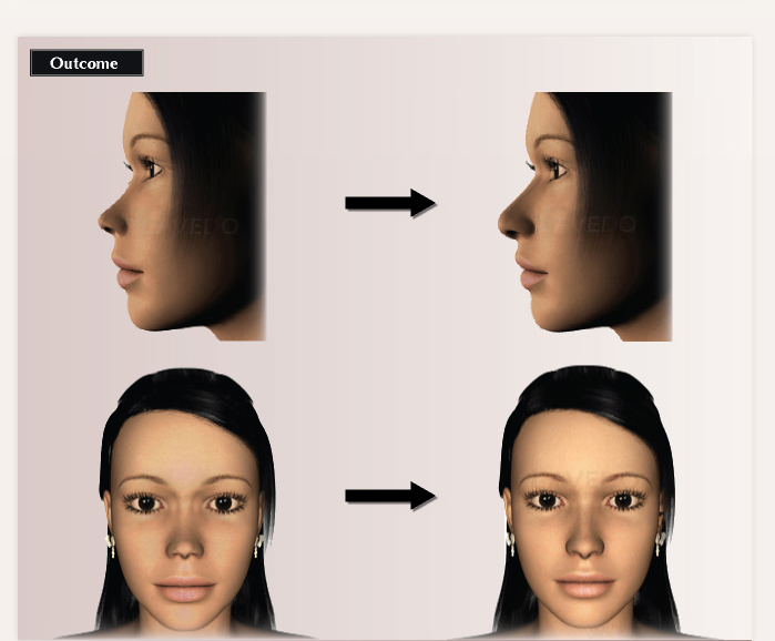 Hyaluronic Acid Injection Nose Hyaluronic Acid Injections
